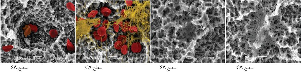 شکل2: تصاویر میکروسکوپی سطوح فیکسچرها