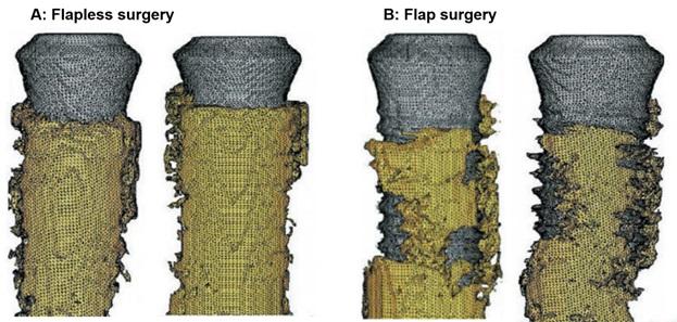 شکل 2: تصاویر میکروسکوپیک از درصد پوشش استخوان (زرد) در اطراف بدنه فیکسچر (خاکستری)